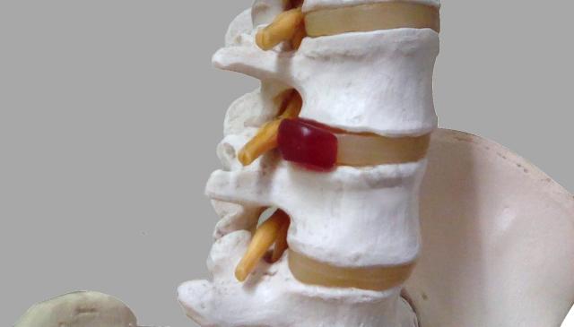 坐骨神経が圧迫されることで痛みが生じます