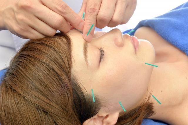 美容鍼で自然治癒力も引き出されます